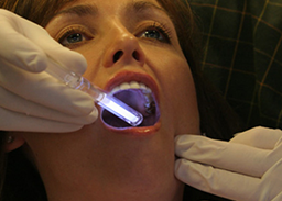 Cosmetic Dentistry in San Jose CA